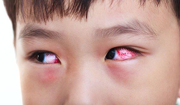 Bị đau mắt đỏ bao lâu sẽ khỏi hẳn?   Vinmec